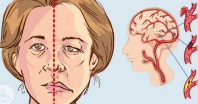 Si të identifikoni shenjat e sulmit në tru