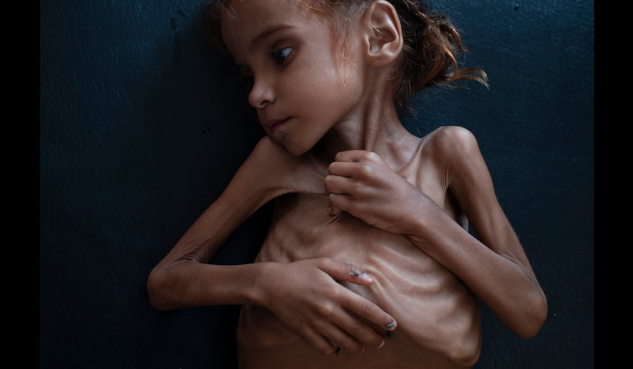Amal Hussain - Foto nga Tyler Hicks/The New York Times